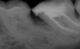 Root Canals Are Bad For Your Health